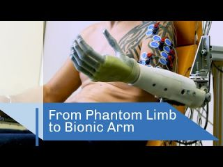 Embedded thumbnail for From Phantom Limb to Bionic Arm | CNRS in English
